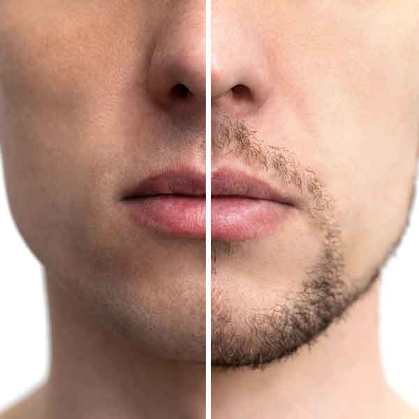 sharone-skin-specialist-grooming-male-before-and-after