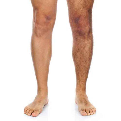 sharone-skin-specialist-half-leg-waxing